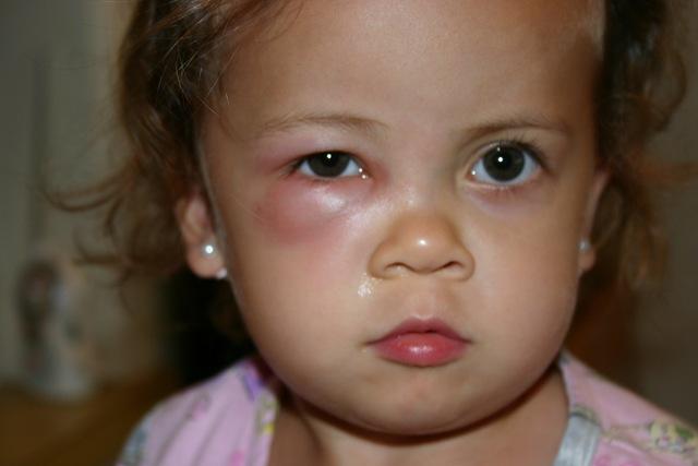 Baby Puffy Eyes Baby Swollen Under Eye